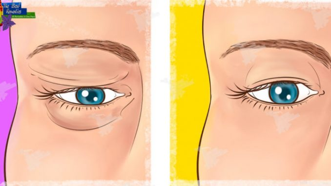 Natural Remedy for Sagging Eyelids