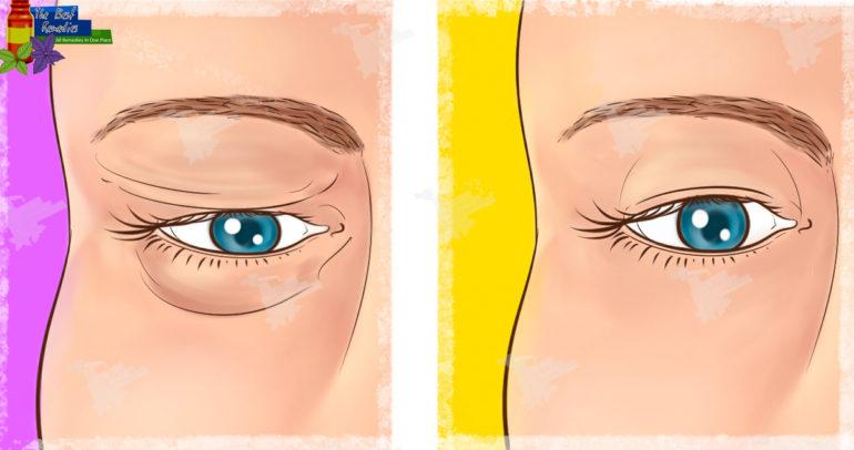 Natural Remedy for Sagging Eyelids