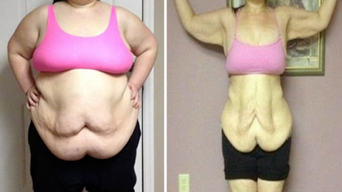 OLD GRANDMAS FORMULA I LOST AROUND 700 POUNDS USING MY GRANDMAS 4 INGREDIENT DRINK THAT CAN MELT BELLY FAT OVERNIGHT