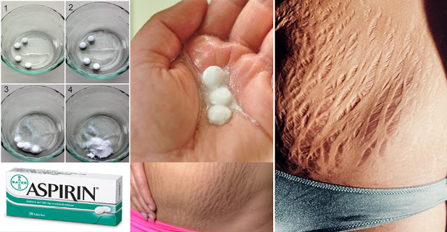 Here Is How To Use Aspirin To Get Rid Of Stretch Marks Easily and Fast!