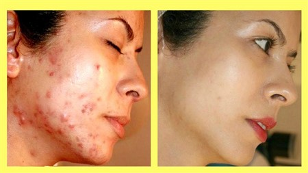You don't have to spend much to remove pimples