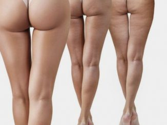 How To Get Rid Of Cellulite : The Definitive Guide