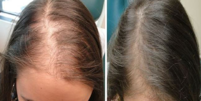 Ginger Hair Mask To Stop Hair Fall and Thinning Hair