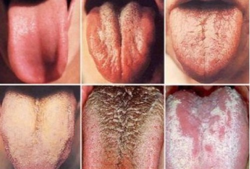 PAY CLOSE ATTENTION TO YOUR TONGUE, IT MIGHT BE SHOWING YOU SIGNS OF CERTAIN HEALTH PROBLEMS.