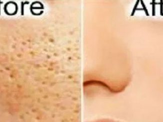 All Open Pores Will Disappear from Your Skin Forever – Just In 3 Days