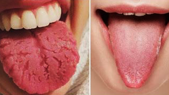 Find Out What Your Tongue Is Trying To Tell You