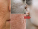 How To Make Pores Disappear With Only 1 Ingredient Naturally