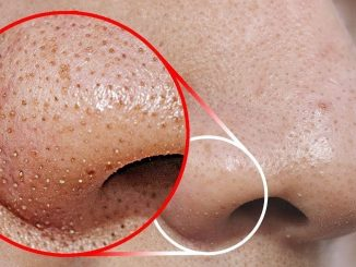 Remove BLACKHEADS / WHITEHEADS At Home In Just 2 Minutes (Best And Easy Way)