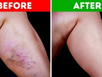How To Get Rid of Varicose Veins Naturally at Home