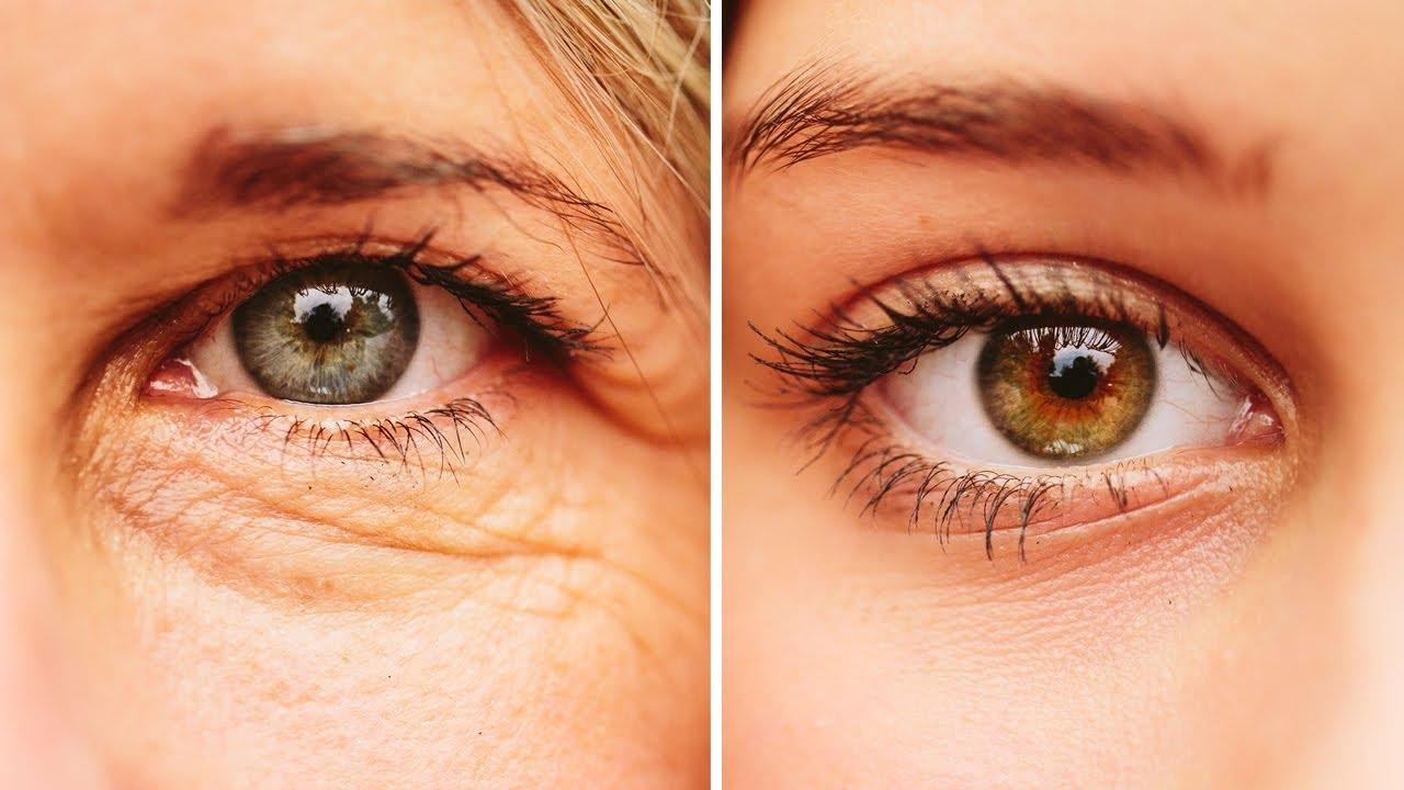 Sagging Eyelids