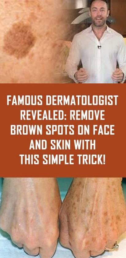 remove-brown-spots