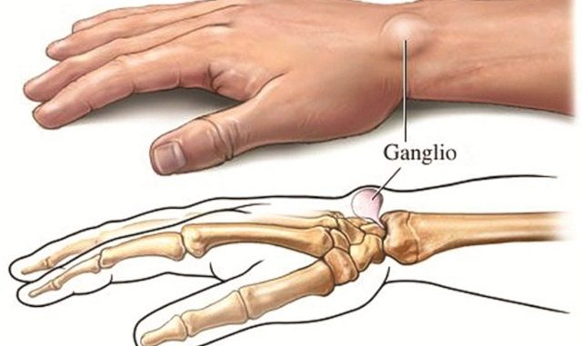 How To Get Rid Of Ganglion Cysts With This Home Remedies