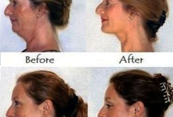FORGET BOTOX: HERE'S HOW TO STRENGTHEN SAGGY CHEEKS, ELIMINATE DOUBLE CHIN AND LOOK YEARS YOUNGER NATURALLY