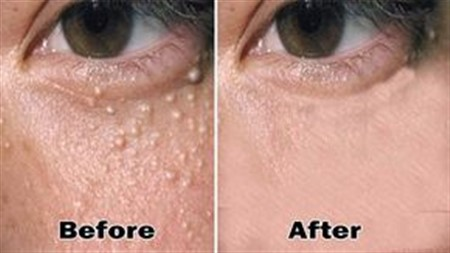 How To Remove The Milia Milk Spots From Your Face Naturally!!!