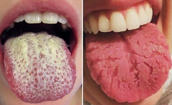 7 Tongue Disorders You Need to Beware of