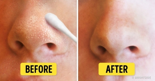 The Toothbrush Remedy To Get Rid Of Blackheads In A Few Minutes