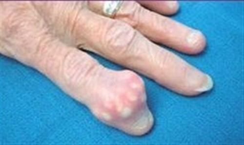 The Easiest and Quickest Way to Eliminate Uric Acid Crystallization From Your Body To Stop Gout And Joint Pain