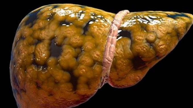 FATTY LIVER DOESN'T SHOW UP IN SCANS UNTIL IT'S TOO LATE. HERE ARE 7 EARLY WARNING SIGNS TO LOOK OUT FOR