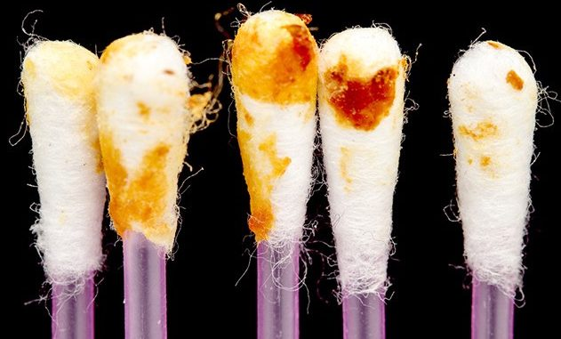 Your Earwax Can Tell How Healthy You Are. What Color Is Yours?